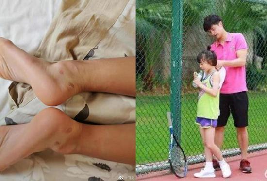 森蝶练网球双脚起泡 田亮更博老父亲心态尽显!